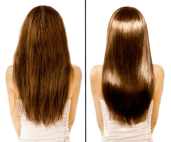 Antes y después tratamiento biotina